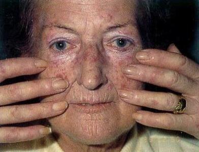Системная склеродермия — симптомы и лечение, фото и видео
