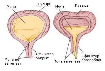 Нейрогенный мочевой пузырь — симптомы и лечение