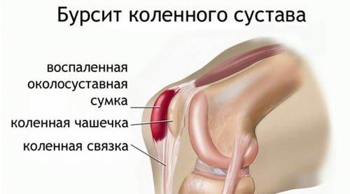Бурсит коленного сустава — симптомы и лечение