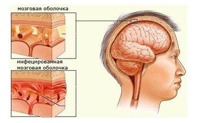 Гемофильная палочка — симптомы и лечение