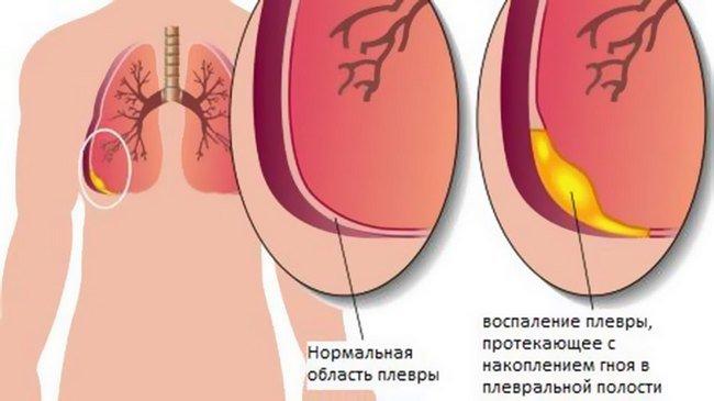 Экссудативный плеврит гидроторакс — симптомы и лечение