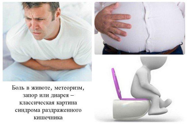 Синдром раздраженного кишечника — симптомы и лечение