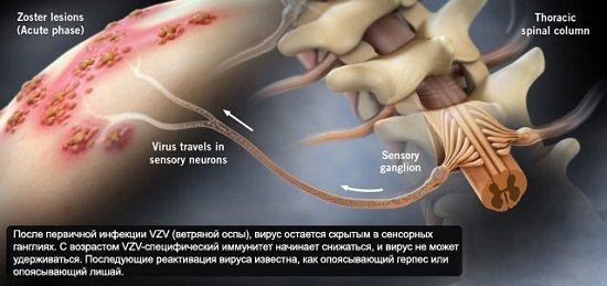 Опоясывающий лишай — симптомы и лечение