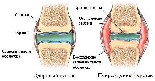 Ревматоидный артрит — симптомы и лечение
