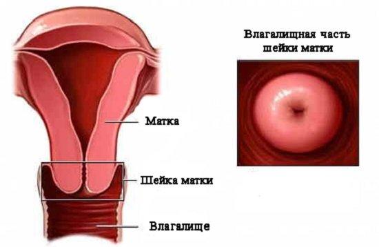 Цервицит — симптомы и лечение
