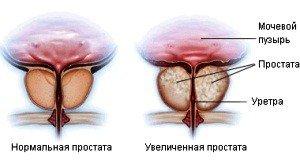 Фиброз склероз — простаты: симптомы и лечение
