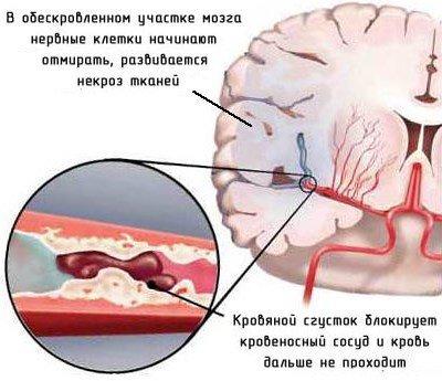 Микроинсульт — симптомы и лечение