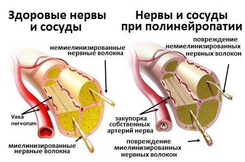 Диабетическая полинейропатия — симптомы и лечение