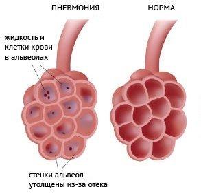 Бессимптомная скрытая пневмония — симптомы и лечение