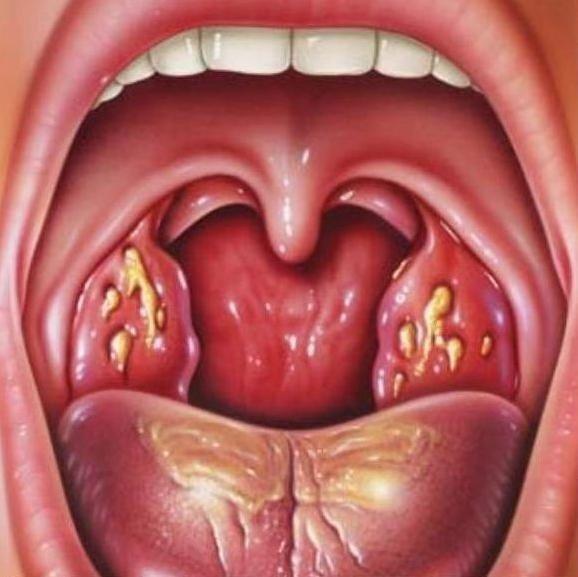 Фарингомикоз — симптомы и лечение