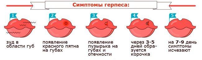 Вирус простого герпеса — симптомы и лечение