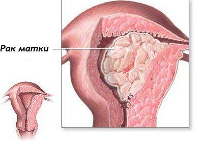 Аденокарцинома матки — симптомы и лечение
