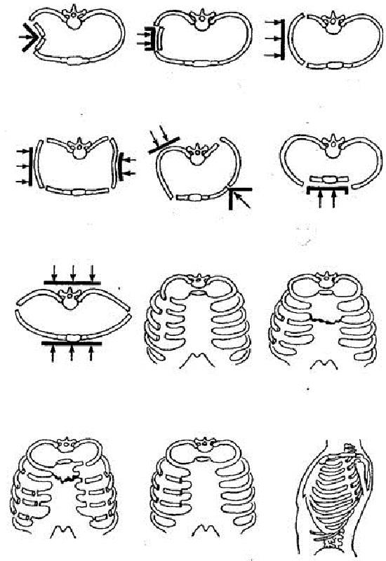 Перелом ребра — симптомы и лечение