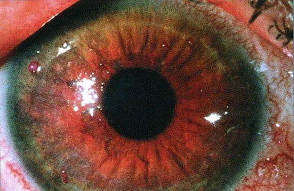 Синдром сухого глаза — симптомы и лечение