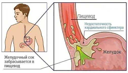 Недостаточность кардии желудка — симптомы и лечение