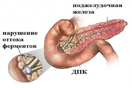 Реактивный панкреатит — симптомы и лечение