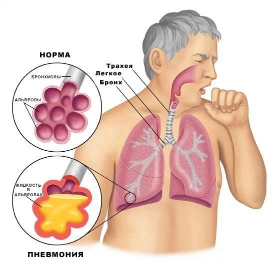 Грибковая пневмония — симптомы и лечение