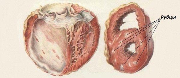 Постинфарктный кардиосклероз — симптомы и лечение