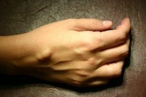 Лечение гигромы стопы и кисти народными средствами