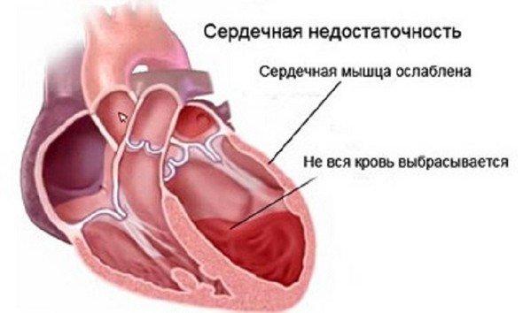 Хроническая сердечная недостаточность — симптомы и лечение