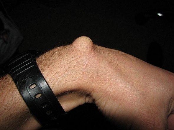 Гигрома запястья — симптомы и лечение