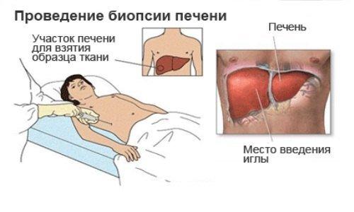 Гемохроматоз — симптомы и лечение