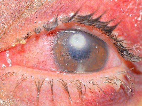 Язва роговицы — симптомы и лечение