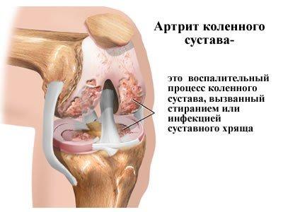 Артрит — симптомы и лечение