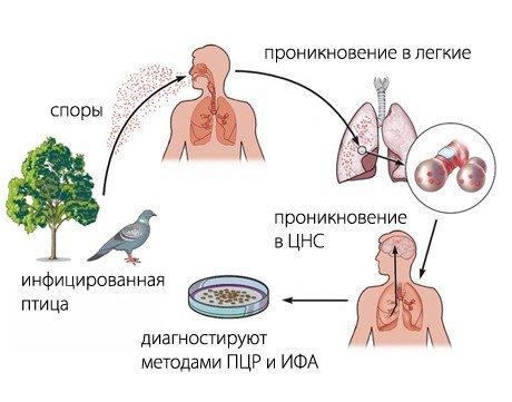Орнитоз пситтакоз — симптомы и лечение