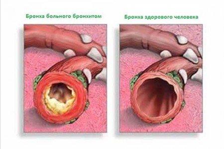 Трахеобронхит – симптомы и лечение, фото и видео