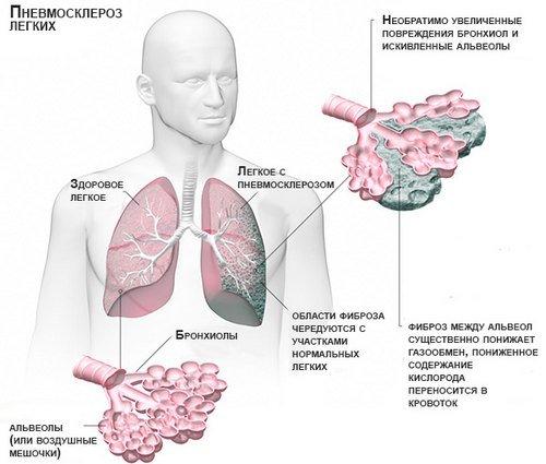 Пневмосклероз — симптомы и лечение