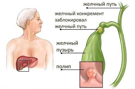 Полипоз желчного пузыря — симптомы и лечение