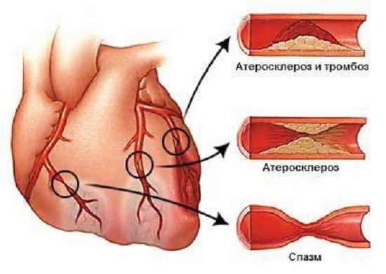 Стенокардия — симптомы и лечение