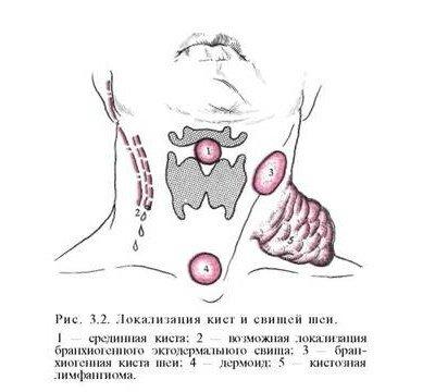 Киста шеи — симптомы и лечение, фото и видео