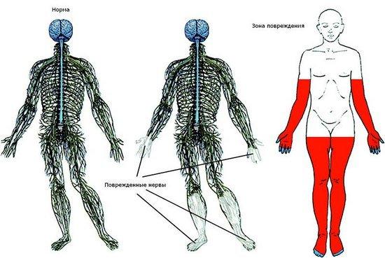 Полинейропатия — симптомы и лечение