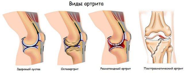 Артрит коленного сустава — симптомы и лечение