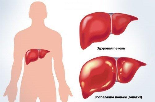 Криптогенный гепатит — симптомы и лечение, фото и видео