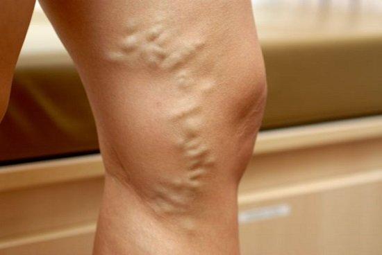 Варикозное расширение вен — симптомы и лечение