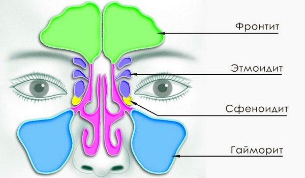 Этмоидит — симптомы и лечение