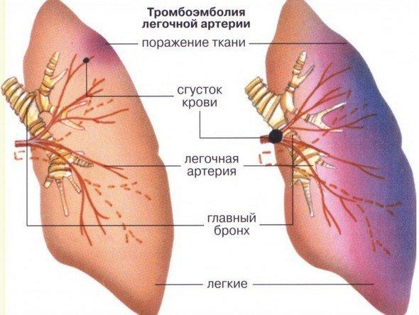 Тромбоэмболия — симптомы и лечение