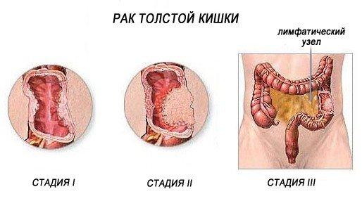 Рак кишечника — симптомы и лечение