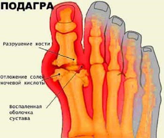 Подагра — симптомы и лечение