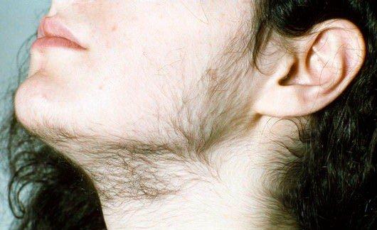 Гирсутизм — симптомы и лечение