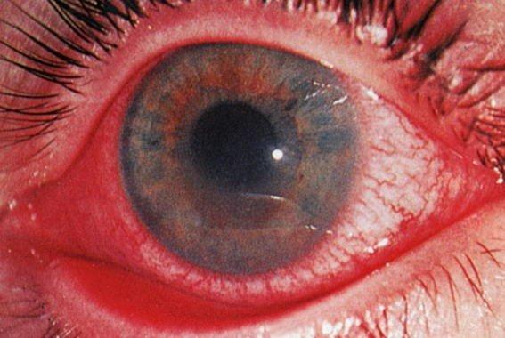 Иридоциклит — симптомы и лечение