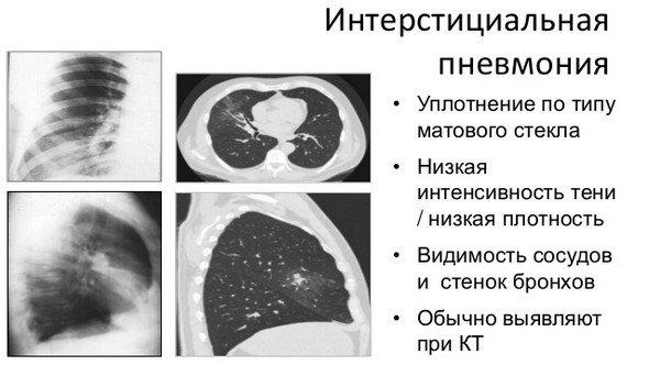 Интерстициальная пневмония — симптомы и лечение