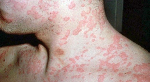 Тубулоинтерстициальный нефрит — симптомы и лечение