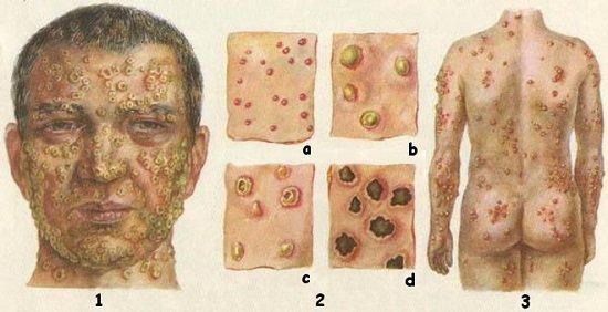 Оспа — симптомы и лечение