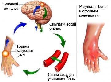 Болевой синдром — симптомы и лечение