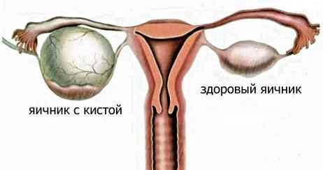 Эндометриоидная киста яичника — симптомы и лечение