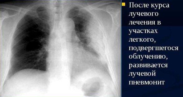 Пневмонит — симптомы и лечение
